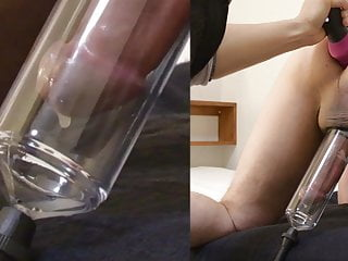 Prostate massaged and milked into a cock pump.